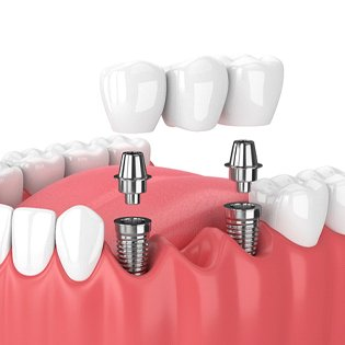 An image of a dental implant bridge with the abutment and custom restoration