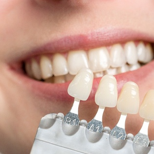 An up-close view of a dentist using a shade guide to determine the correct color for a patient's veneers