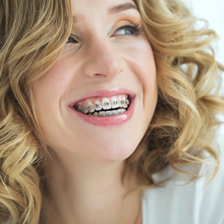 A young woman with blonde, curly hair, smiling while wearing traditional metal braces