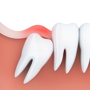 Animation of impacted wisdom tooth